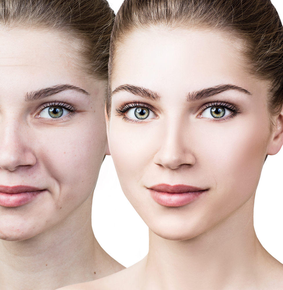 Wrinkle Reduction and Skin Rejuvenation with Venus Viva and Venus Swan